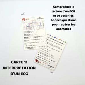 11 INTERPRETATION D'UN ECG